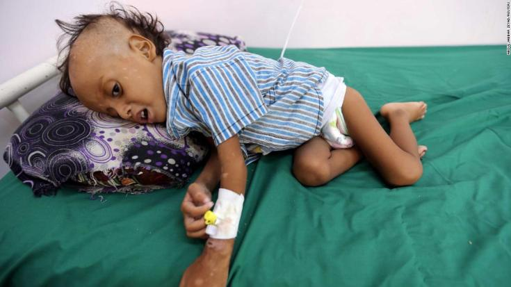 Act now over Yemen conflict or share blame for mass famine, charities tell US