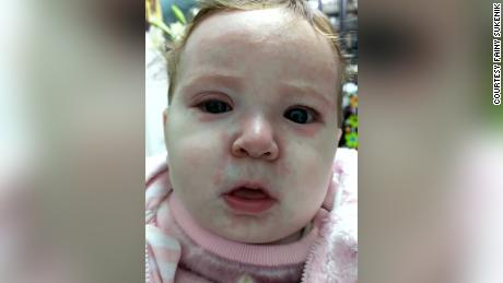 This baby got measles because of anti-vaxers