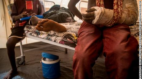 Two injured children sit inside a UNICEF tent at the regional hospital in Mopti.