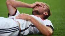 International football's concussion protocols 'are the worst in the world'