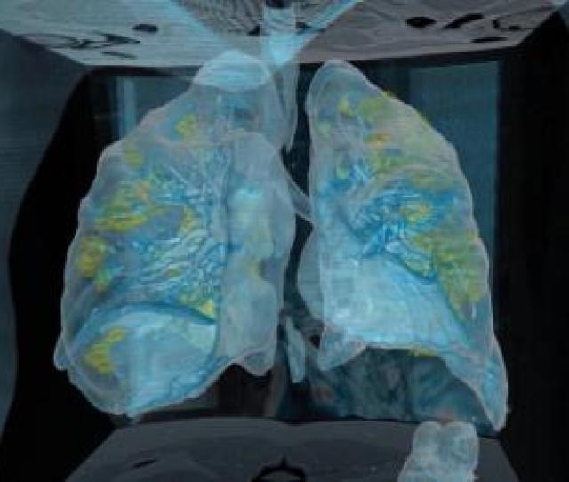 D Video Shows Covid  Attack Patients Lungs Cnn Video
