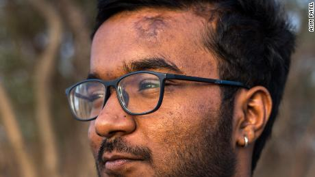 Bhanu's head injury left him with a scar, but he was determined not to let it define him.