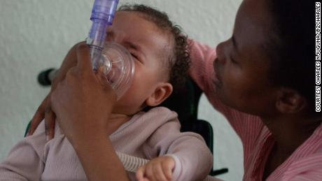 """To calm Ayah down during breathing treatments, her mother softly sings """"You Are My Sunshine."""""""