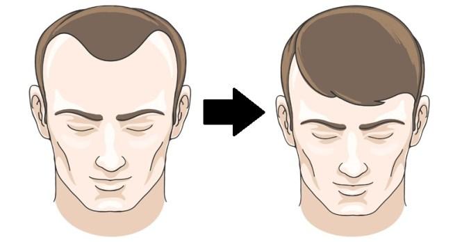 Image result for hair loss reversal