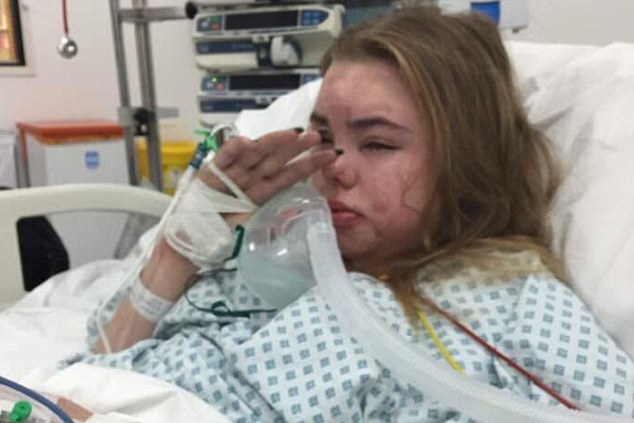 Leah shortly after waking from her coma. (Image via North West News Service)