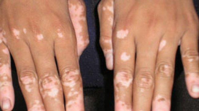 Mengenal Lebih Dekat Dengan Vitiligo