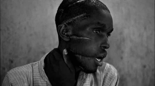 A Hutu man who did not support the genocide had been imprisoned in the concentration camp, starved and attacked with machetes. He managed to survive after he was freed and was placed in the care of the Red Cross, Rwanda, 1994