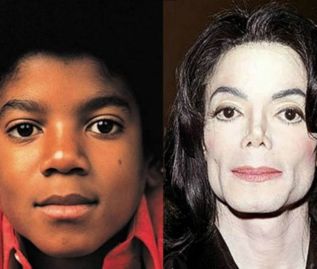 World Celebrates World Vitiligo Day On June 25 One Person Whose Condition Was A Mystery To Many Comes To Mind This Was The King Of Pop Michael Jackson
