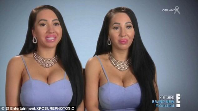 Самым похожим в мире близнецам хирурги отказались сделать общую грудь близнецы, жизнь на двоих, пластическая хирургия, странные люди