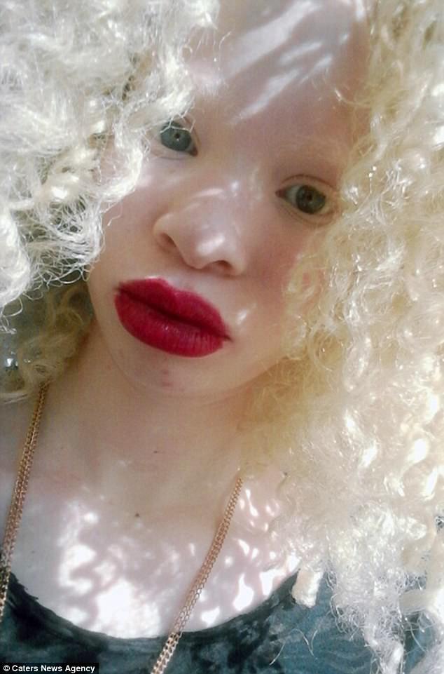 Красавица-альбинос добилась успеха в модельном бизнесе Счастливый конец, альбинос, альбиносы, африканка, вопреки обстоятельствам, модель, успех