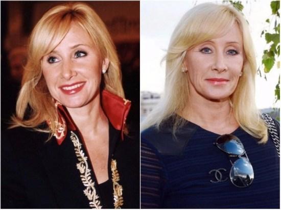 Оксана Пушкина звезды, знаменитости, лицо, пластическая операция, российские звезды, тогда и сейчас, хирург
