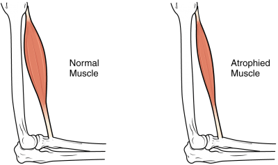 atrofia muscular devido a lesão medular