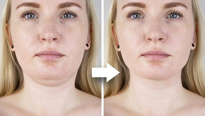 How to Retouch a Double Chin Using Photoshop