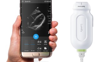 The mobile ultrasound revolution: How technology is expanding this medical tool to new frontiers