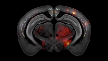 三维老鼠脑