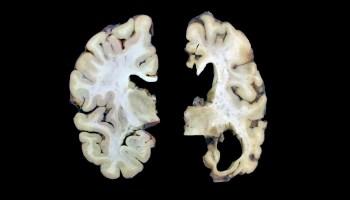 健康与老年痴呆症的大脑