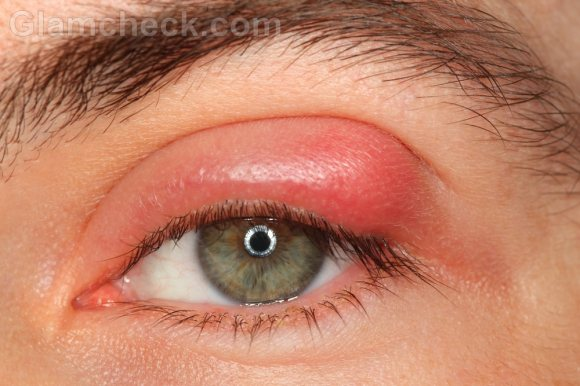 Eye infections; Ocular Infections