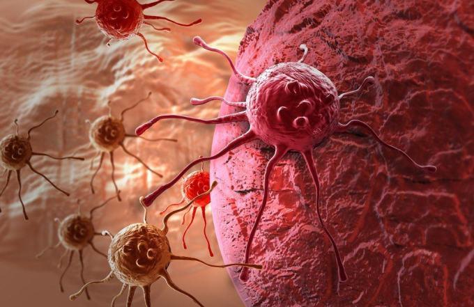 artikel kanker