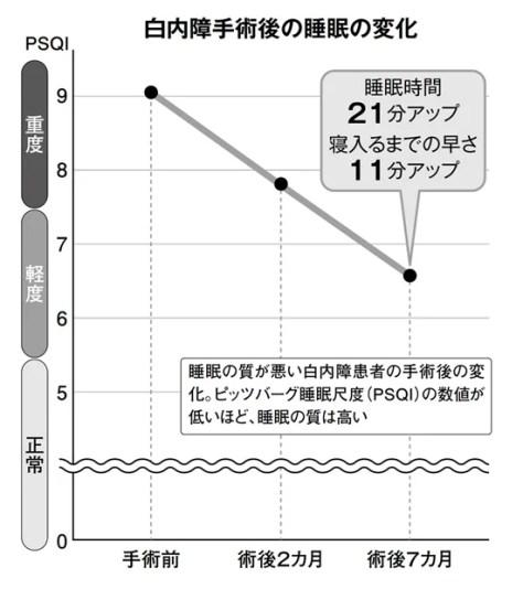 白内障手術後の睡眠の変化(週刊朝日 2018年4月6日号より)