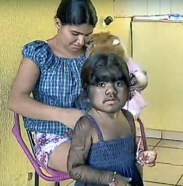 Werewolf Syndrome Girls Parents Fear Hypertrichosis Will