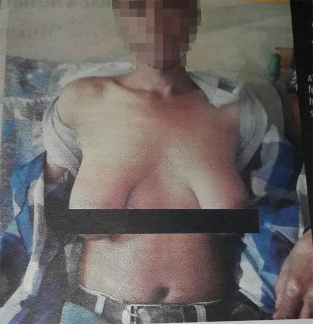 Cursed man grows boobs