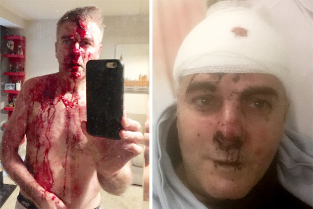 https://i2.wp.com/cdn.images.dailystar.co.uk/dynamic/1/photos/727000/620x/Crime-Home-Invasion-David-Pugh-Machete-Solihull-Burglary-Attack-Police-Zeus-Dog-Krav-Maga-681970.jpg?w=1060&ssl=1