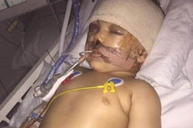 Josh Cribben in hospital bed