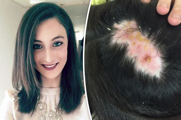 Young Woman Left With Huge Bald Patch After Getting Hair