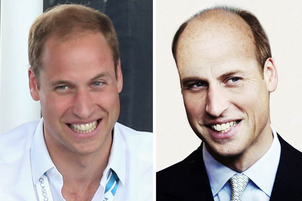 How Prince William Will Look At 50 Royal Scalp Will Be
