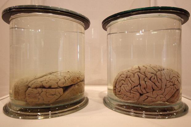 Brains grown in labn