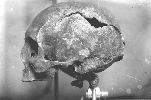 Recovered skull