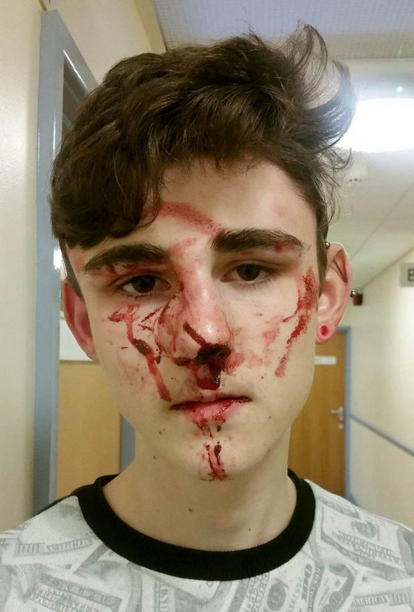 Bradley Kendrew with bloodied face