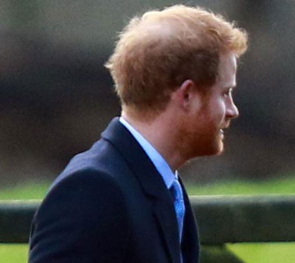 Harry IS Going Bald Its Not Just William Prince Harry
