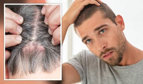 Do you have an itchy scalp? The 'contagious' scalp infection your rash could be signalling