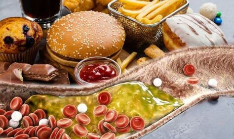 High cholesterol: Worst type of food for raising cholesterol – which foods to avoid