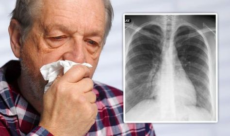 Blood clots: Five 'very serious' warning signs of a blocked blood vessel in the lungs