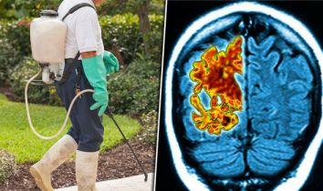 「toxic dementia」の画像検索結果