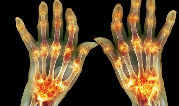 fibromyalgia symptoms pain uk health conditions