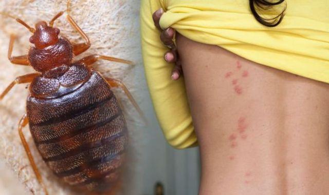 image of a bedbug and bedbug bites