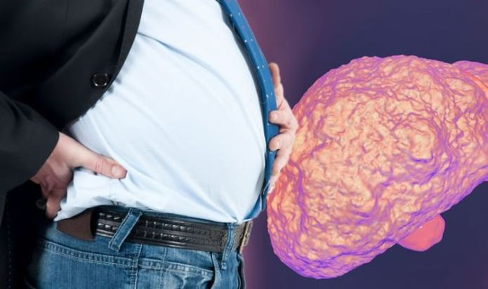 Fatty liver disease symptoms: Six signs your condition has become irreversible
