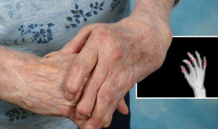 Rheumatoid arthritis symptoms: Three 'efficient predictors' of the condition developing