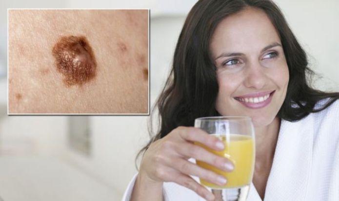 Skin cancer warning - high orange consumption linked to raised risk of melanoma in study