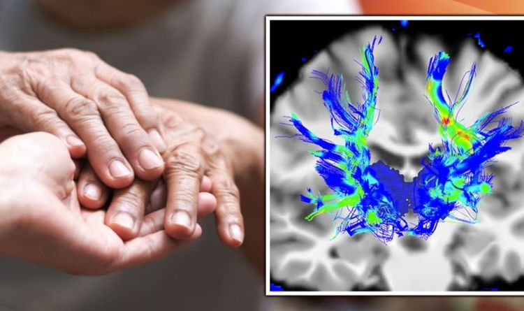 Parkinson's disease: Six early signs that can alert you to the brain condition - 'smell'