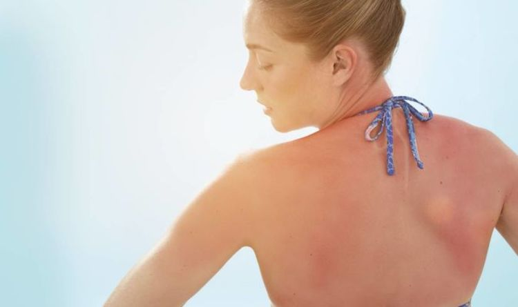 How to treat sunburn - 5 DIY remedies to soothe your sunburn