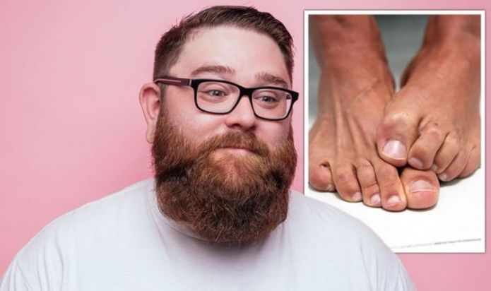 Diabetes type 2 symptoms: Five warning signs on your feet that signal high blood sugar
