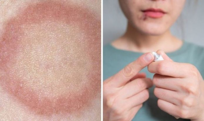 How to get rid of ringworm - the 6 ways to stop ringworm from spreading