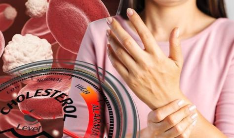 High cholesterol symptoms: The subtle sign in your fingers indicating high levels