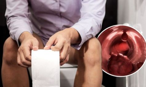 Bowel cancer symptoms: A 'change in the look' of your poo is a warning sign - visual clues