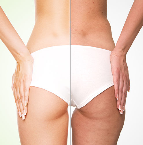 Image result for cellulite