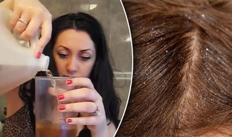Image result wey dey for Apple cider vinegar for dry scalp?